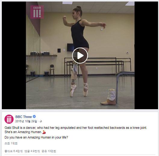 페이스북: BBC3 'Amazing Humans' 중 'Gabi Shull'편